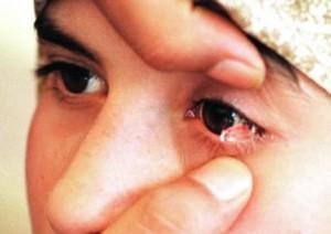 perierga.gr - Απίστευτο! Κοριτσάκι κλαίει... πέτρες!