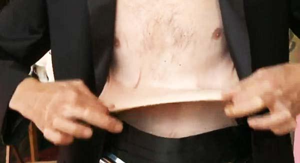 perierga.gr - Γνωρίστε τον άνθρωπο με το πιο ελαστικό δέρμα!