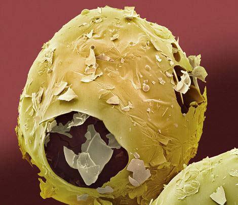 perierga.gr- Τρόφιμα της καθημερινότητας στο μικροσκόπιο!