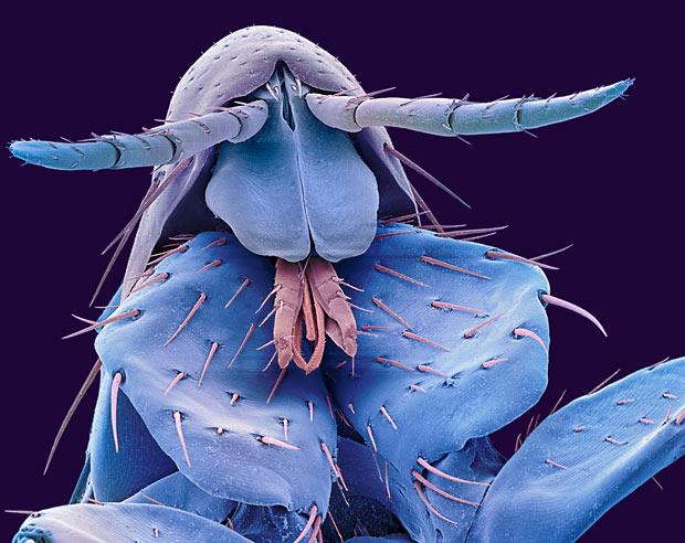 perierga.gr - 10 ζωντανοί οργανισμοί στο μικροσκόπιο!