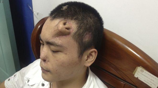 perierga.gr - Θύμα τροχαίου μεγαλώνει τη μύτη που έχασε στο μέτωπό του!