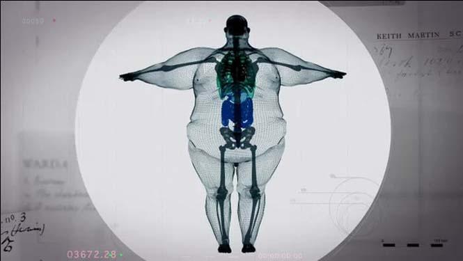 perierga.gr - Ακτινογραφία ανθρώπου 445 κιλών!