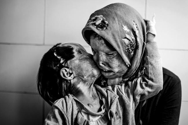 perierga.gr - Δυνατές φωτογραφίες αγάπης!