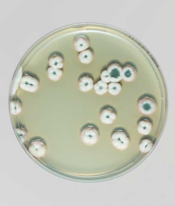 perierga.gr - Η ομορφιά των μυκήτων σε τρυβλία Petri!