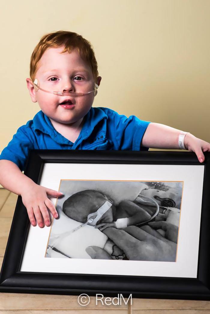 perierga.gr - Παιδιά που γεννήθηκαν πρόωρα ποζάρουν με τις... μωρουδιακές φωτογραφίες τους!