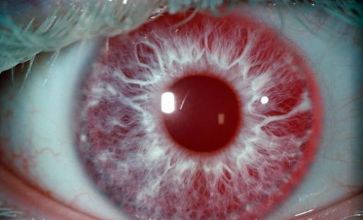 perierga.gr - Tα πιο σπάνια χρώματα ματιών στον κόσμο!