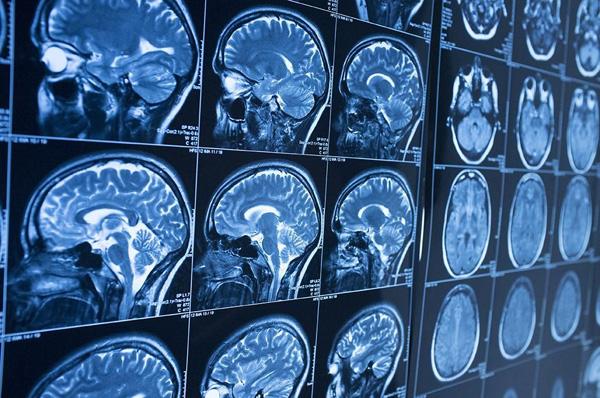 Perierga.gr-Επιτυχημένη δοκιμή νέου φαρμάκου δείχνει πως μια θεραπεία του Αλτσχάιμερ είναι εφικτή