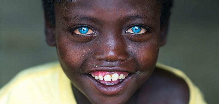 perierga.gr - Aγόρι από την Αφρική με γαλάζια μάτια!