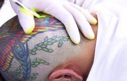 Perierga.gr - Γιατί τα τατουάζ δε φεύγουν από το σώμα μας;