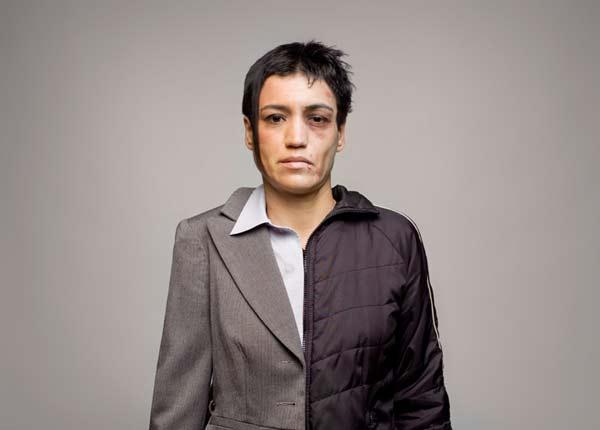 perierga.gr - Οι επιπτώσεις της χρήσης ναρκωτικών σε ένα πρόσωπο!