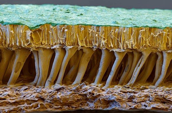 perierga.gr - Κάτω από το ηλεκτρονικό μικροσκόπιο