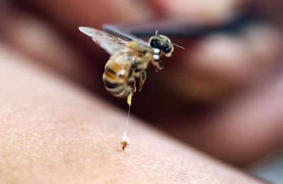 perierga.gr - Πού πονάει περισσότερο το τσίμπημα της μέλισσας;