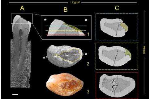 perierga.gr - H επίσκεψη στον προϊστορικό οδοντίατρο ήταν μάλλον εφιαλτική!