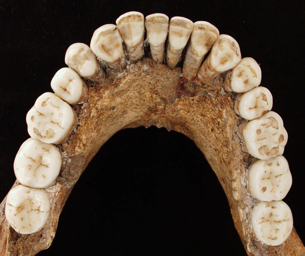 perierga.gr - Ήταν οι Νεάντερταλ οι πρώτοι οδοντίατροι της ανθρωπότητας;