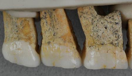 Perierga.gr - Σημαντική ανακάλυψη: Οστά άγνωστου ανθρώπινου είδους εντοπίστηκαν στις Φιλιππίνες
